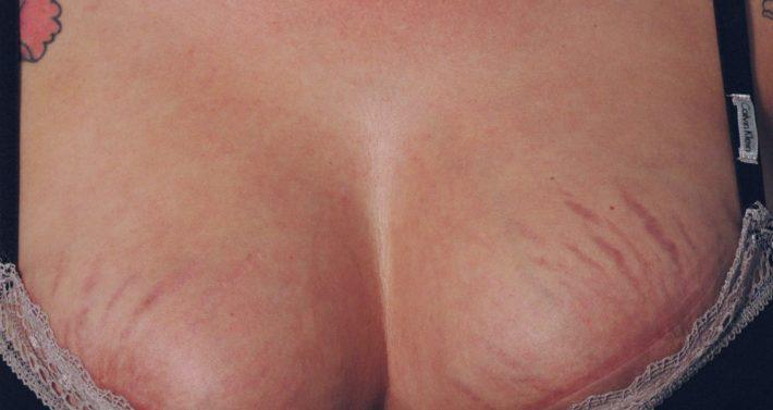 растяжки на груди фото