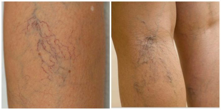 Причины варикоза на ногах у молодых женщин
