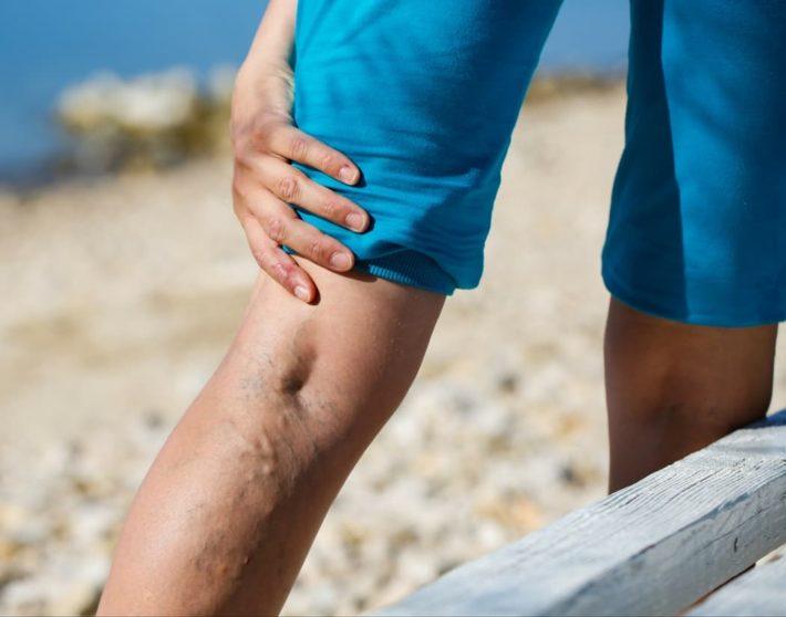 Варикоз на ногах: чем опасен, симптомы, стадии, фото, у женщин ...