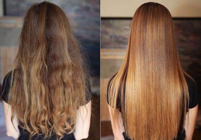 таблетки никотиновая кислота для волос помогает ли