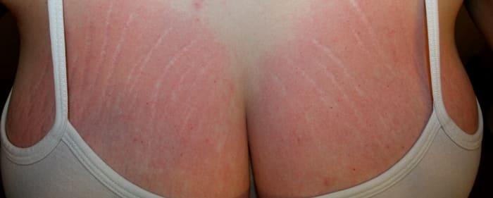 Красные полосы на груди