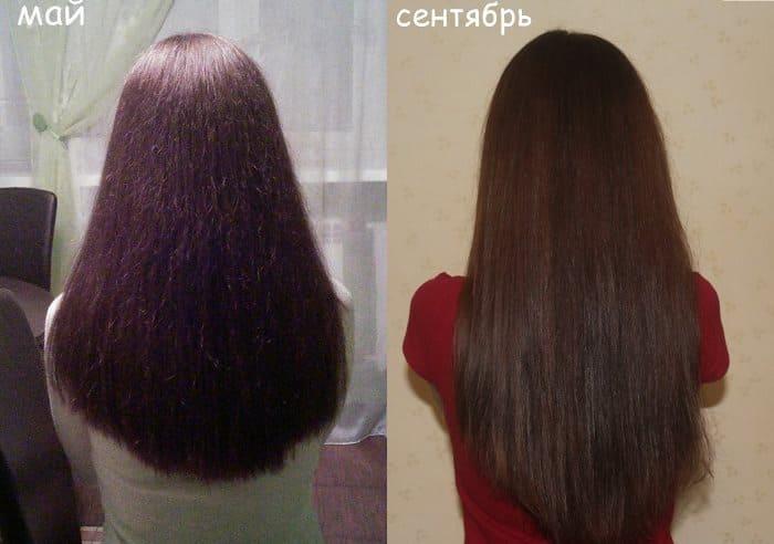Состав пантовигар для волос и его аналоги