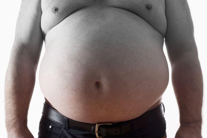 Ожирение 3 степени морбидное что это